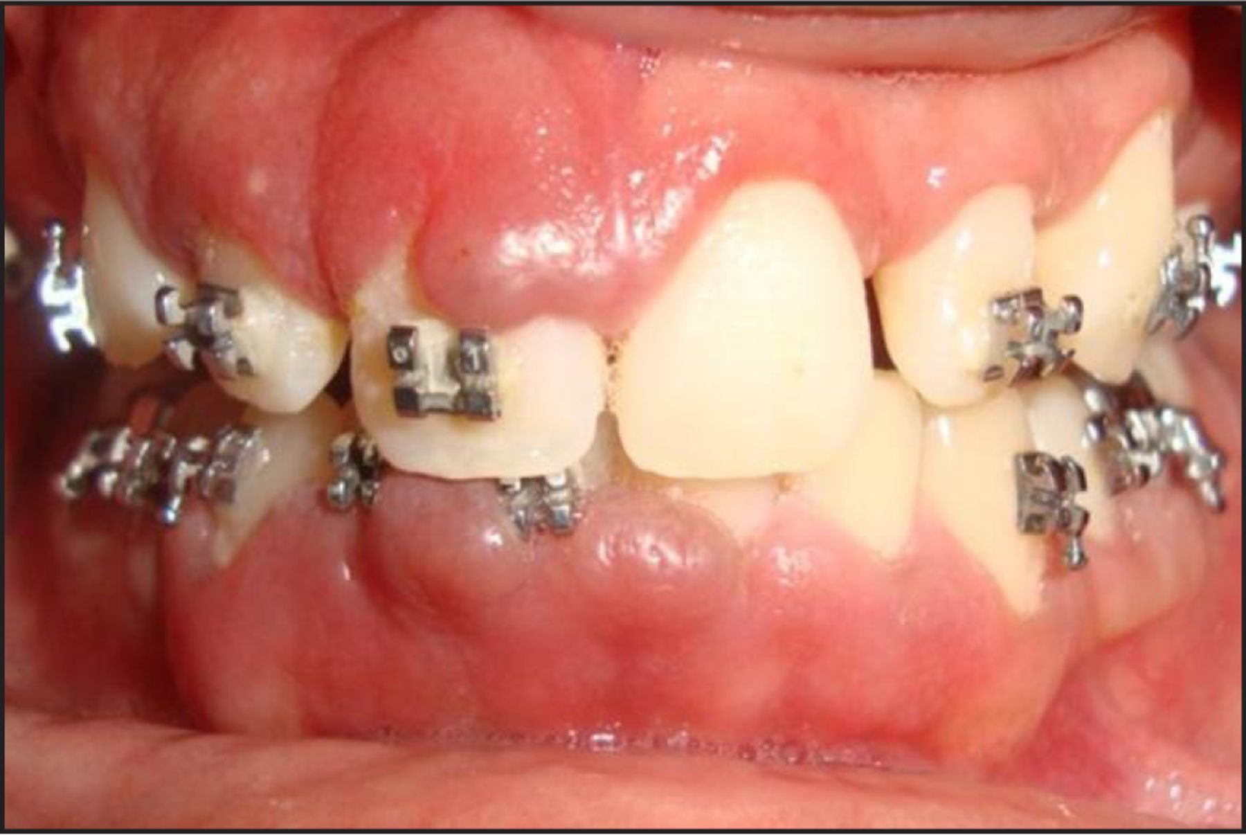 Chronic Inflammatory Gingival Enlargement Associated with ...  Chronic Inflamm...