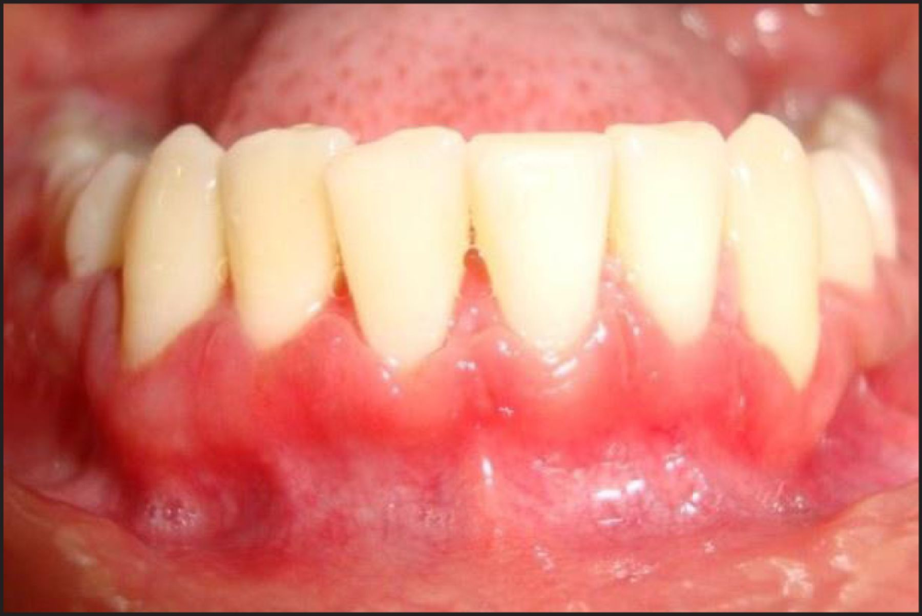 Fibromatosis of gums: causes, forms, symptoms, treatment. Hyperplasia of gums
