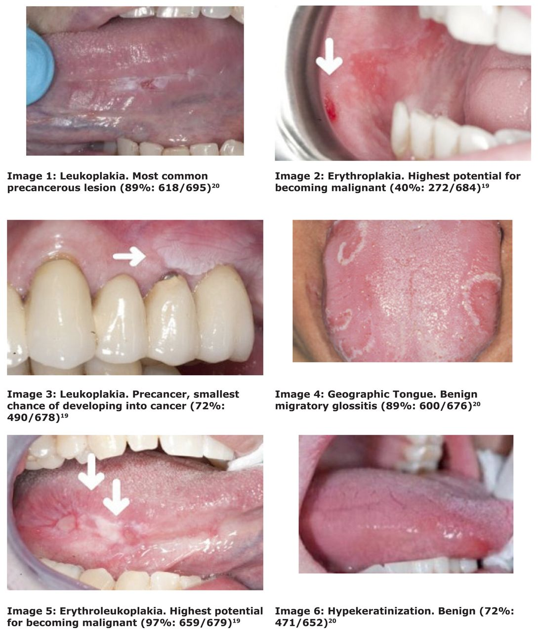 Leukoplakia Early Tongue Cancer Pictures